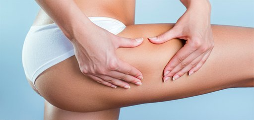 Cellulite Treatment Montreal